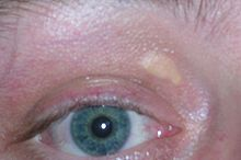 Xanthelasma palpebrarum, yellowish patches consisting of cholesterol deposits above the eyelids. These are more common in people with familial hypercholesterolemia.