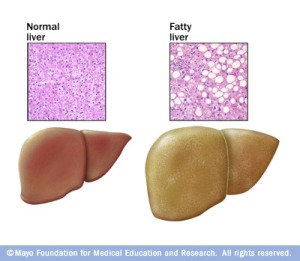 Non_Alcoholic_Fatty_LiverDisease