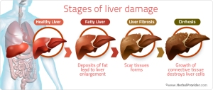 stages-of-liver-damage