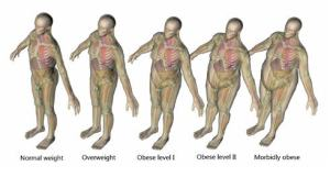 obese_people_ct_scan