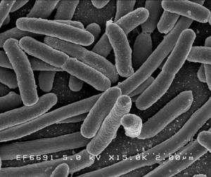 High fat diets encourage the growth of specific species of bacteria, including those that cause inflammatory bowel ...